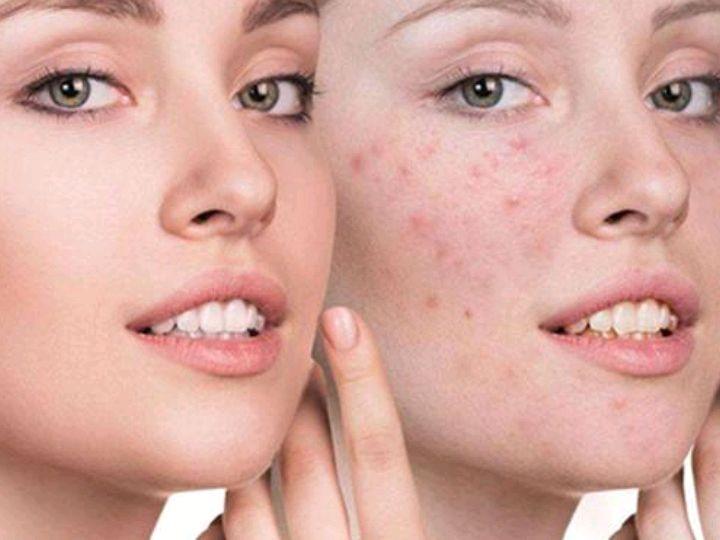 注意:秋季易肝火旺,痘痘、斑点上脸,用3方法降火消痘去斑图1