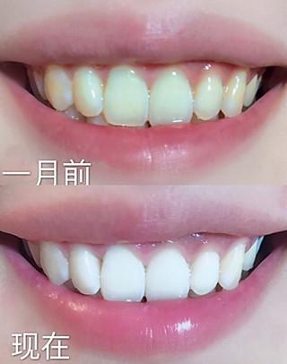 m幸福尐妖精的不伤牙齿❗️三个步骤❗️超低成本牙齿美白方法❗️